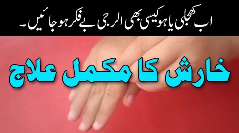 Kharish Ka Fori ilaj-Itching Desi Treatment-How To Stop Skin Itching
