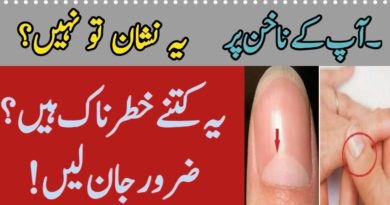 Nails Par Sufaid Nishan Ka Matlab-What Causes White Marks On Nails